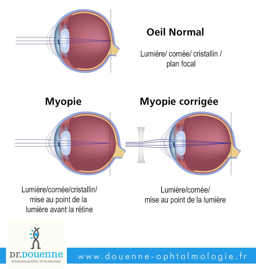 La Myopie Chirurgie De L Oeil Dr Douenne